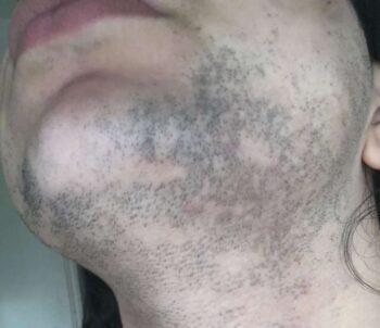 Bartentfernung nach 1. Laser Behandlung 2