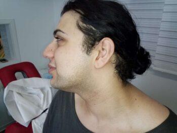 vor der ersten Bartentfernung